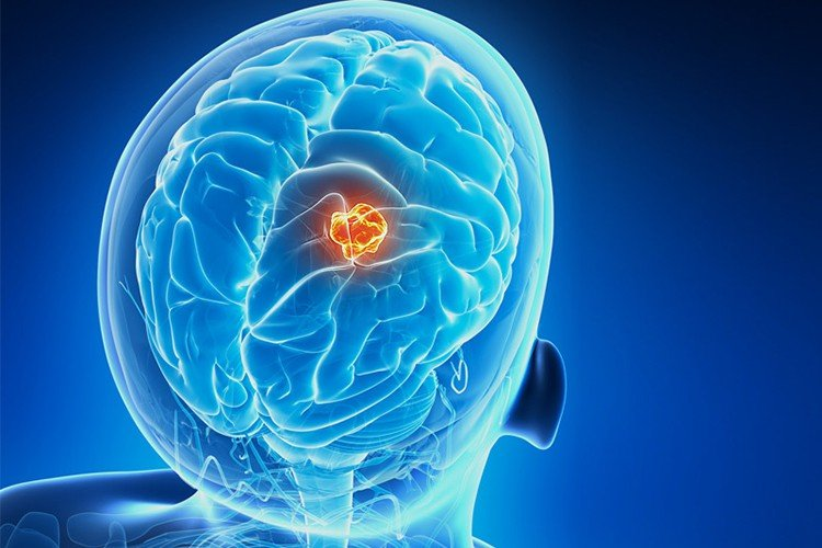 Dalla PNEI uno studio per aumentare l'efficacia delle terapie oncologiche standard nel trattamento del glioblastoma