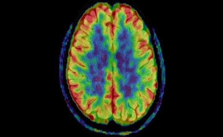 Alzheimer e Parkinson: una PET di nuova generazione aiuterà i medici nelle cure