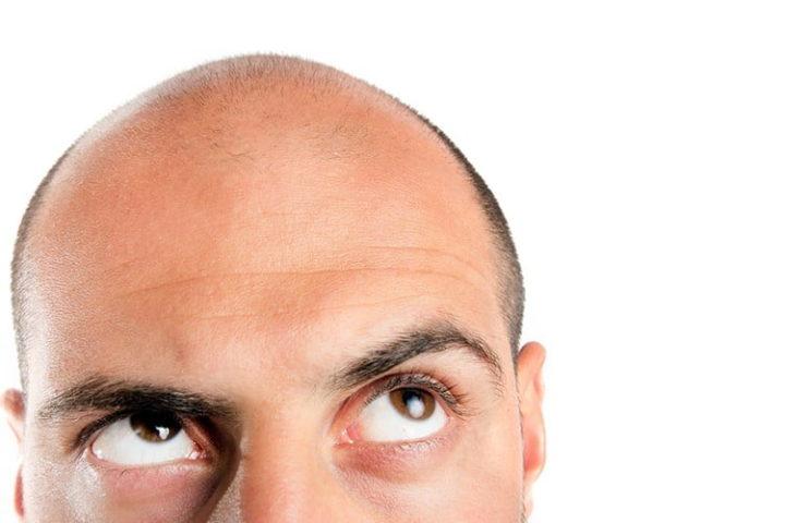 I rimedi naturali fai da te per prevenire la caduta dei capelli e stimolarne la crescita