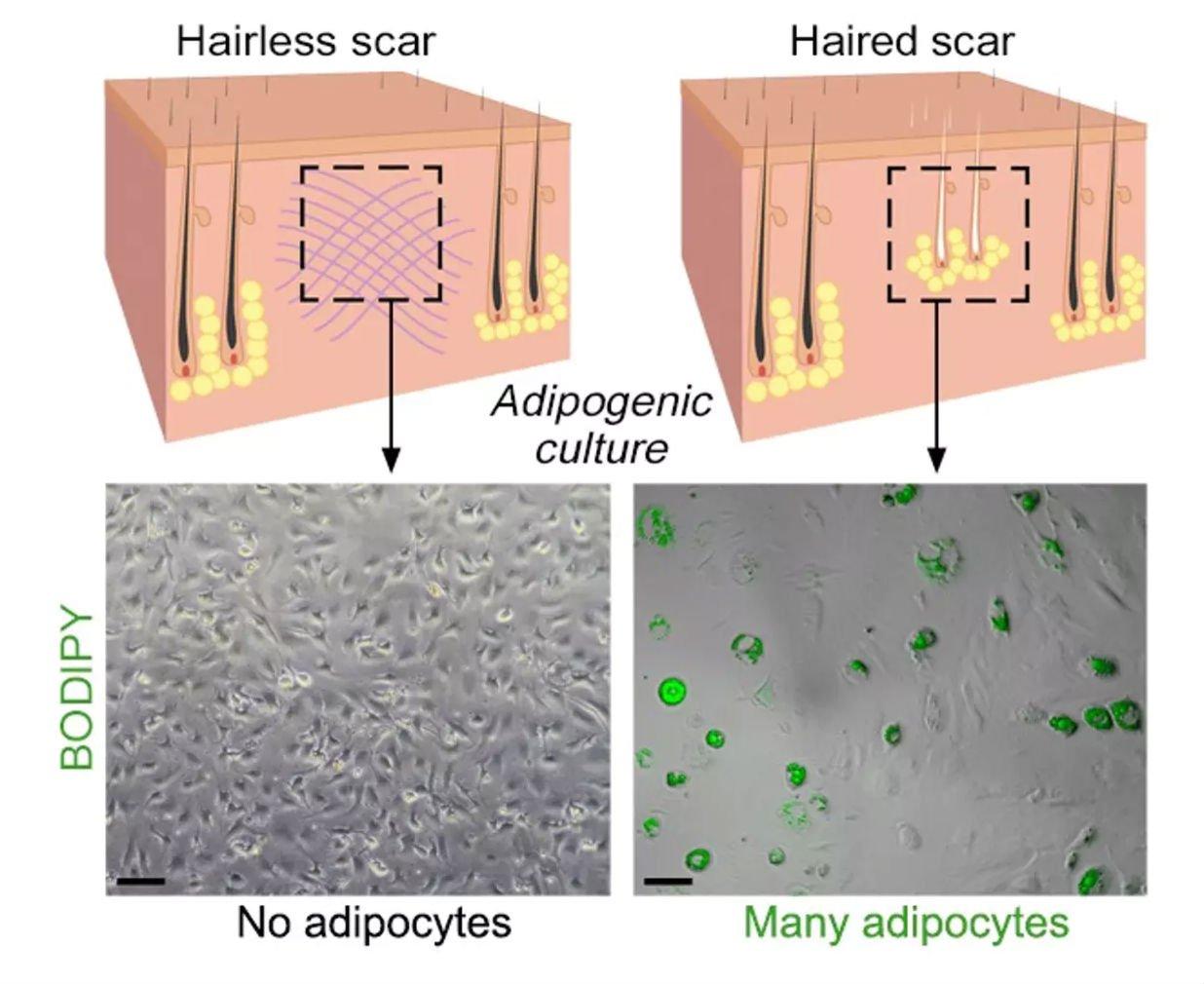 I ricercatori hanno capito come curare le ferite senza lasciare cicatrici
