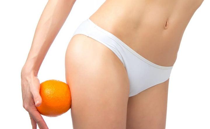 Rimedi naturali per la cellulite