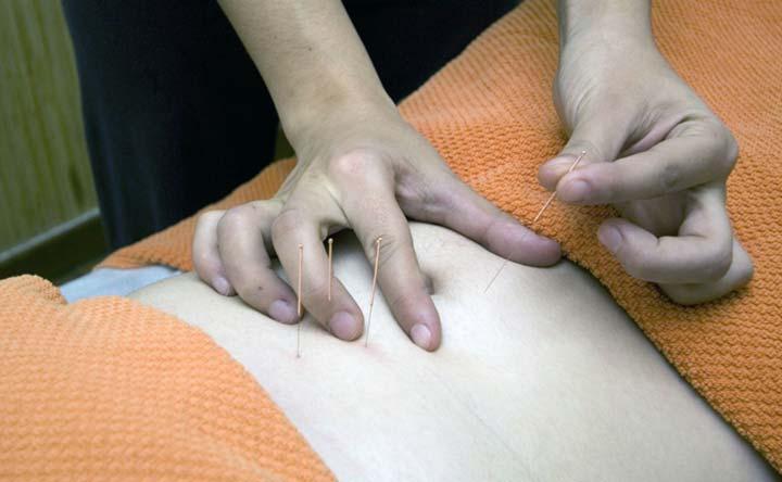 Stop alle vampate con l'agopuntura