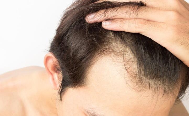La salute dei capelli passa anche dal tuo frigo